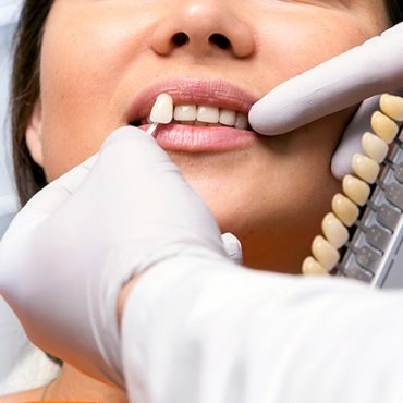 Dentist doctor selects the size of the tooth to the client. Dentist services