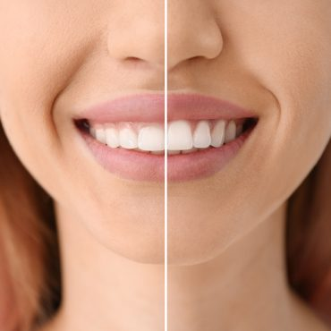 Young woman before and after procedure of gingival plasty, closeup